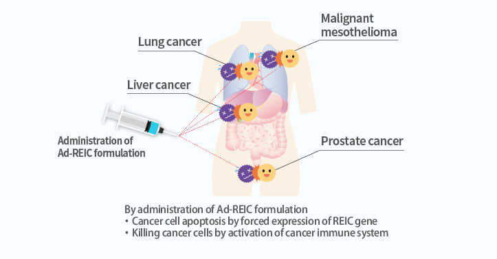 Immunotherapy of cancer by gene therapy Development of a next-generation cancer drug